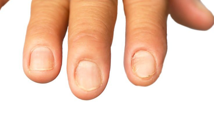 Nails and hair getting weaker due to protein deficiency