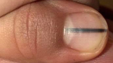 Melanoma can be detected if you see this mark on your nail