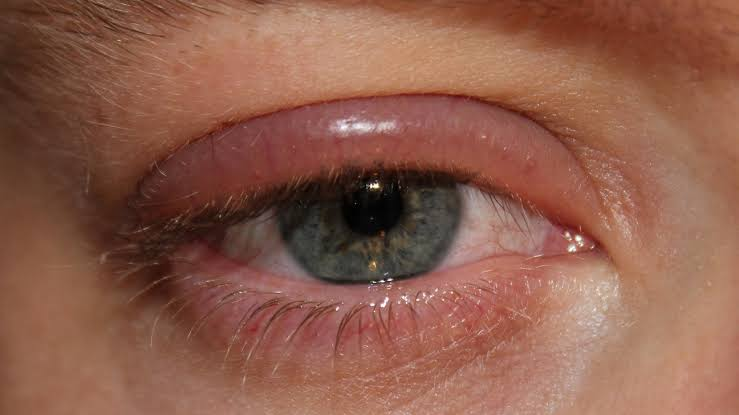 Eye infections example